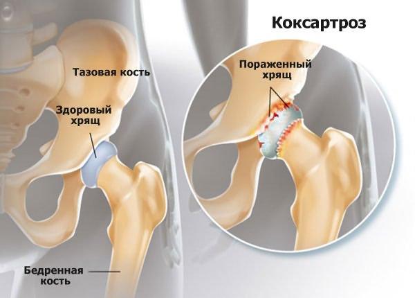 a csípőízület kezelésének 3. fokú deformáló artrózisa miért fáj a bal könyökízület