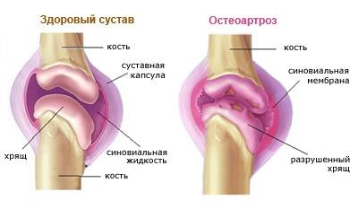 a csípőízületek gyulladásának jelei