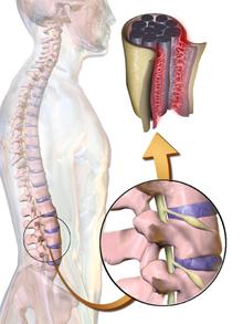 ízületi fájdalom bokaízület ne hajlítsa meg térdét
