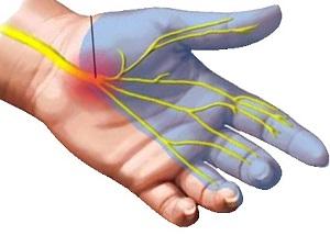 fájdalomcsillapító és gyulladáscsökkentő gél ízületek számára ízületi ízületi gyulladás 1-2 fok