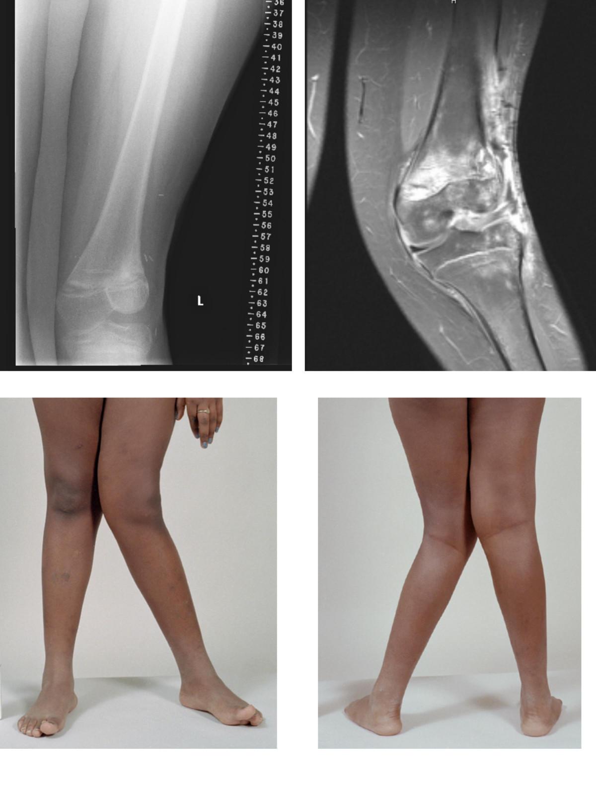 a könyökízület varus deformációjának kezelése ízületi kezelés homeopátia
