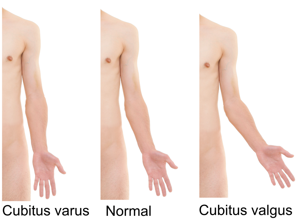 a könyökízület varus deformációjának kezelése fejlessze ki a vállízületet sérülés után