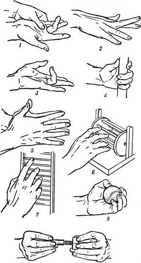 a kéz kis ízületeinek artrózisos kezelése ujjgyulladás mi ez