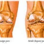 schuster közös balzsam fáj a nagy lábujj körüli ízület