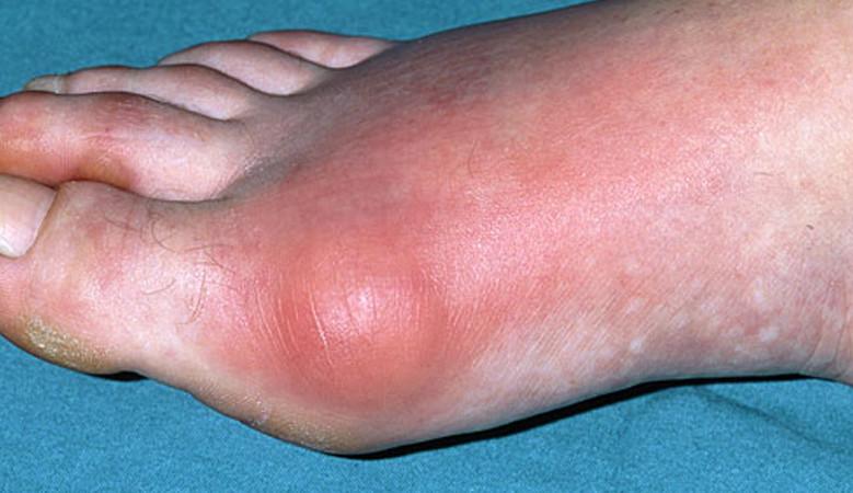 a láb ízületének gyulladása