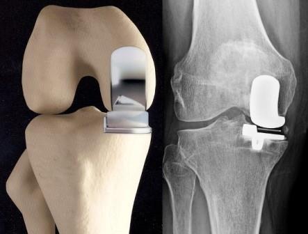 a térd gonarthrosis kezelése a lábízület szinovitisz kezelése