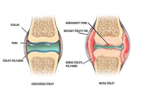 a második fokú kezelés csípőízületének coxarthrosis boróka ízületi fájdalmak kezelésére