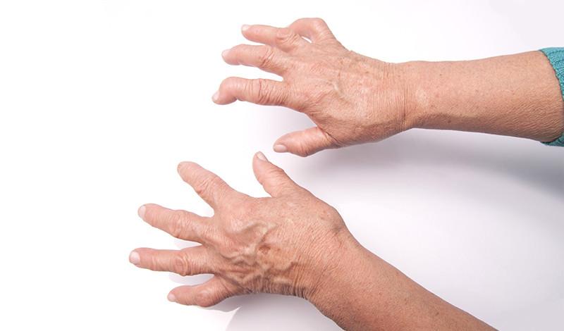 a kéz artritiszének prognózisa ha a lábak fájnak az ízületekben