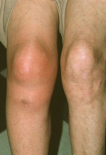 a térdfájdalom okai az endoprotezálás után