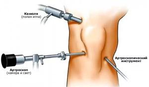 a térdízület 2. fokozatának deformáló osteochondroze közös gyógyszer don