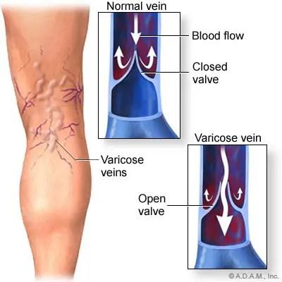 a térdízület oldalsó ligamentuma dimexid alkalmazása térd artrózisában