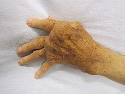 fáj a fájdalom a kéz ízületeiben hogyan kell kezelni a csípőízület szinovitist