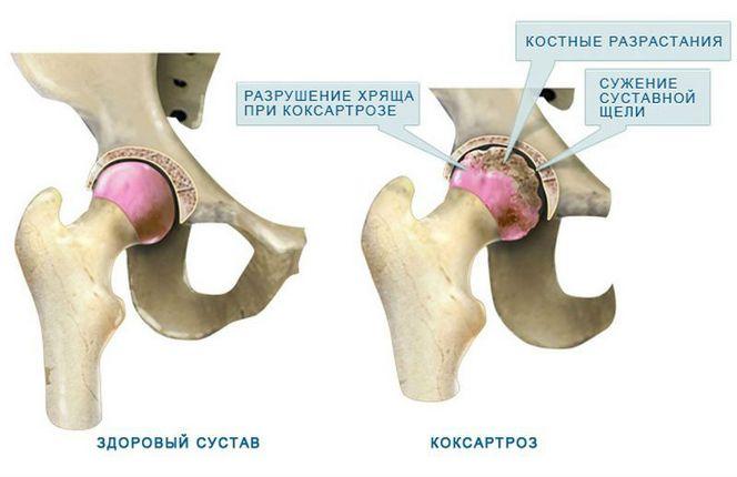 Okok, a csípő dysplasia tünetei gyermekekben, a kezelés módszerei - Arthritis July