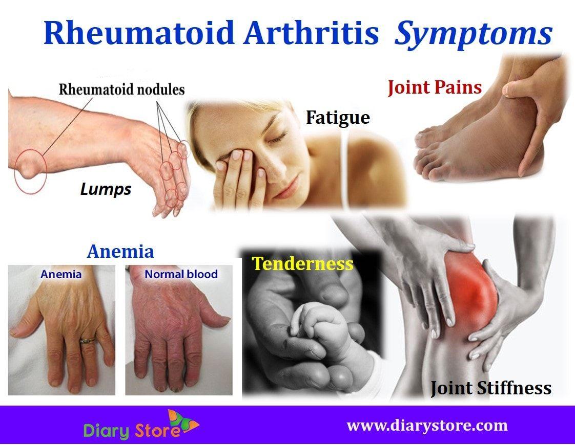 ízületi fájdalomkezelő gyógyszerek áttekintése