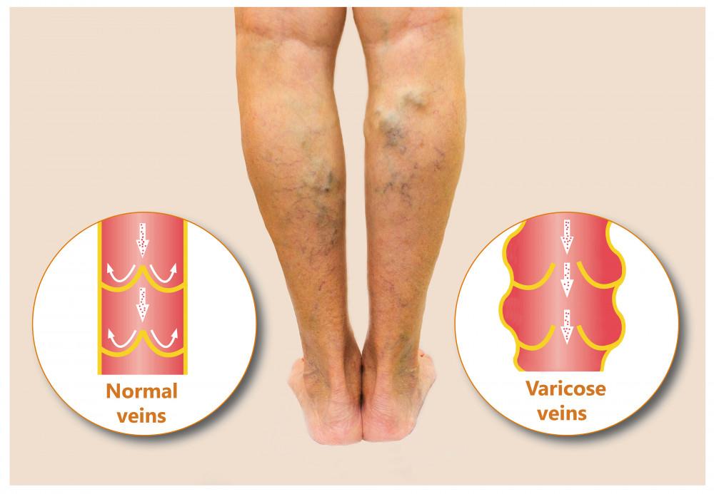 térdízület deformáló artrózis könyökízület epicondylitis betegség