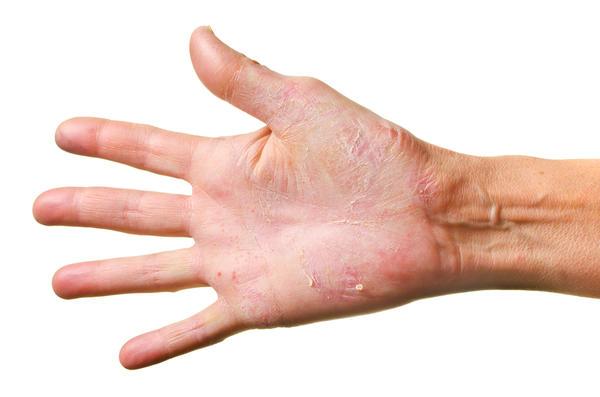 Zsibbadás tünetei és kezelése