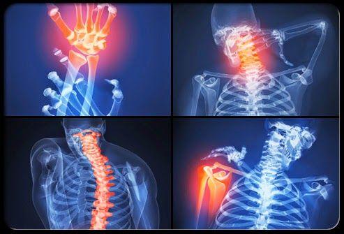 fájdalom és merevség a vállízületben a gonarthrosis különbsége a térdízület artrózisában