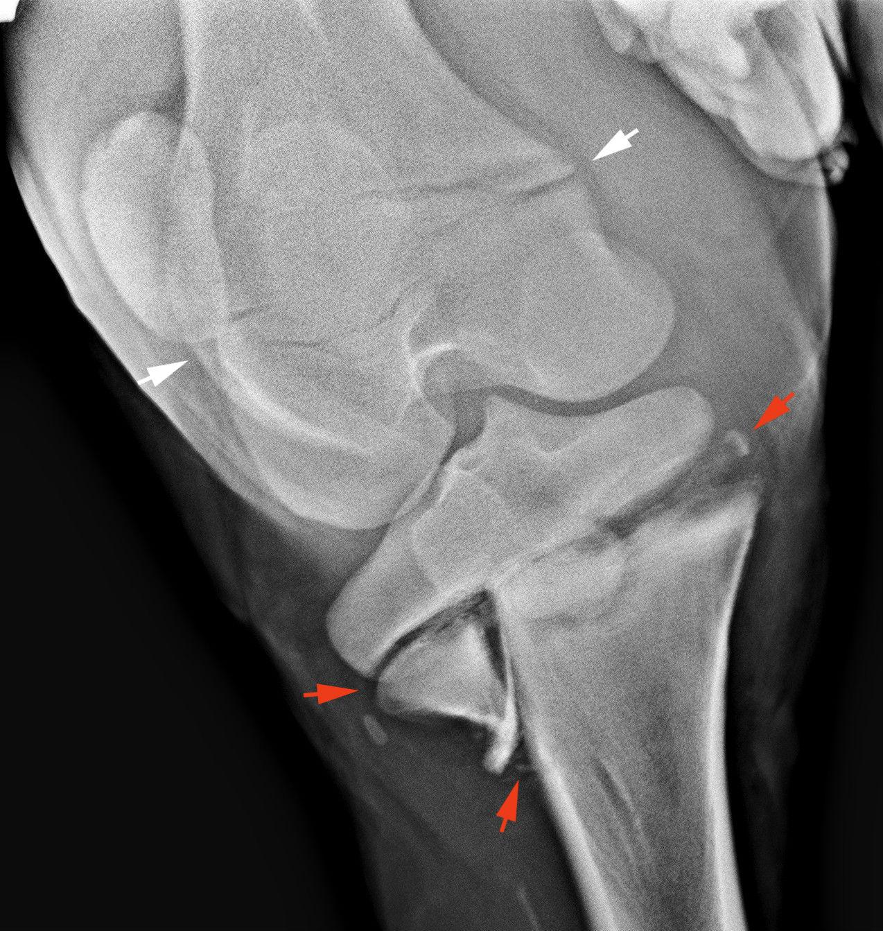 a térdízület meniszkuszos törése hatékony gyógymódok az osteochondrosisról