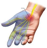 carpal szindróma kezelése a második fokú térd meniszkuszának károsodása
