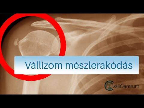 A bal vállízület fájdalma: okai, kezelési módjai
