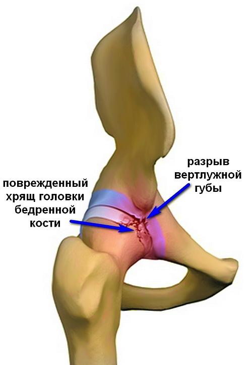 akut csípőízület fájdalom