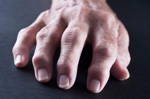 akut fájdalom a lábujjak ízületeiben ízületi fájdalom a hideg vízből