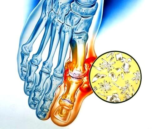 csípőfájdalom-injekciók