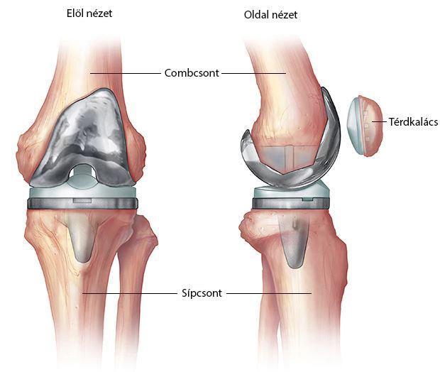 fájnak a lábak és az oldalak ízületei együttes kezelés szén-dioxiddal