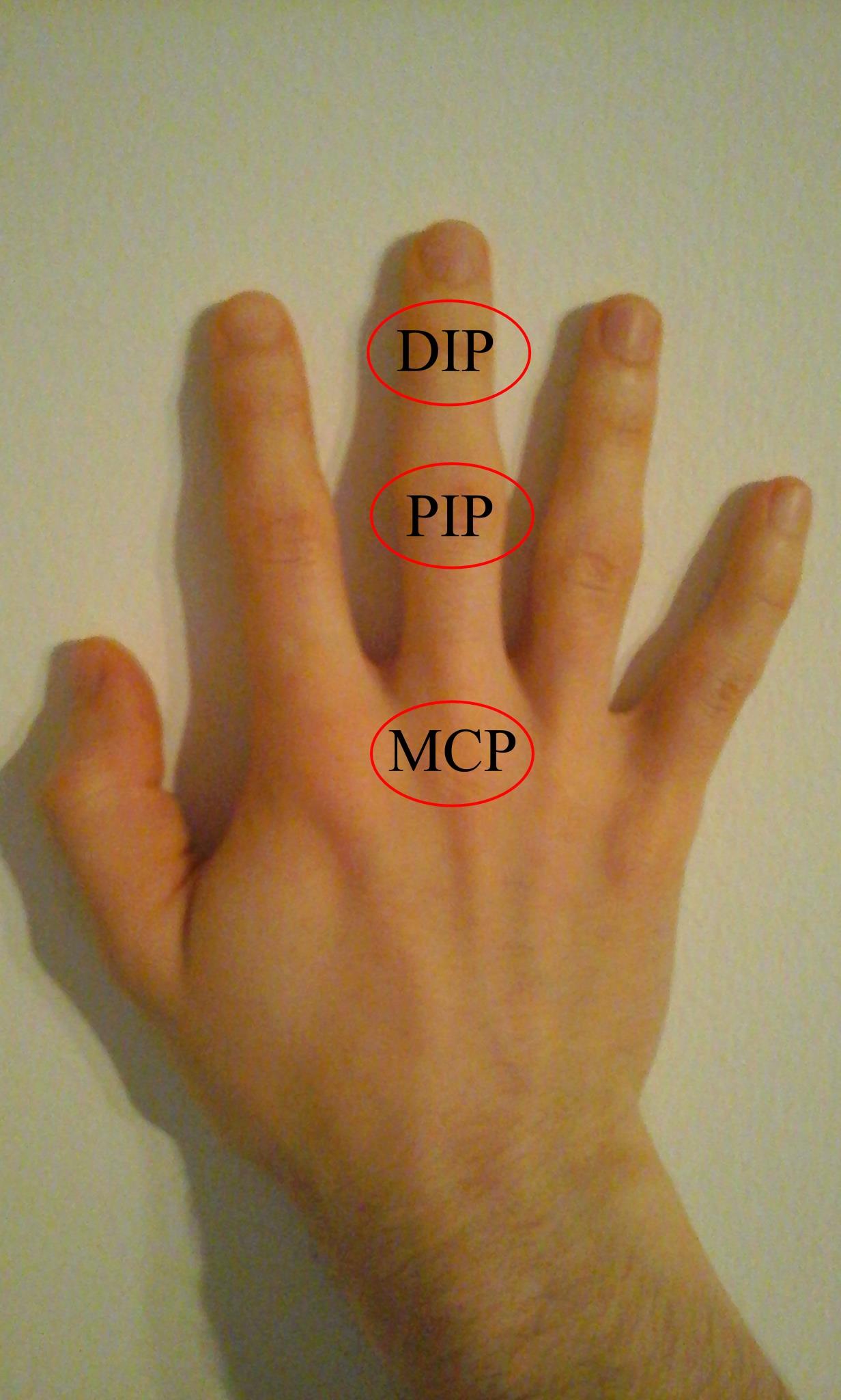 az ujjak duzzanata és ízületi fájdalmak
