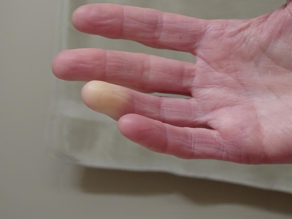 plazmolifting a térd kezelésében ízületi fájdalmak emeléskor