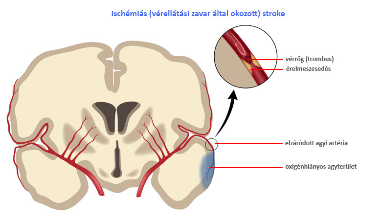 könyökfájdalom stroke után