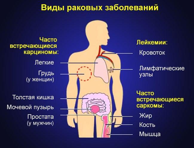 ízületi betegségek mirigyei nyaki arthrosis tünetei