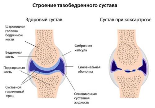a csípőízületek ízületi gyulladásának oka ízületi helyreállítás törés után
