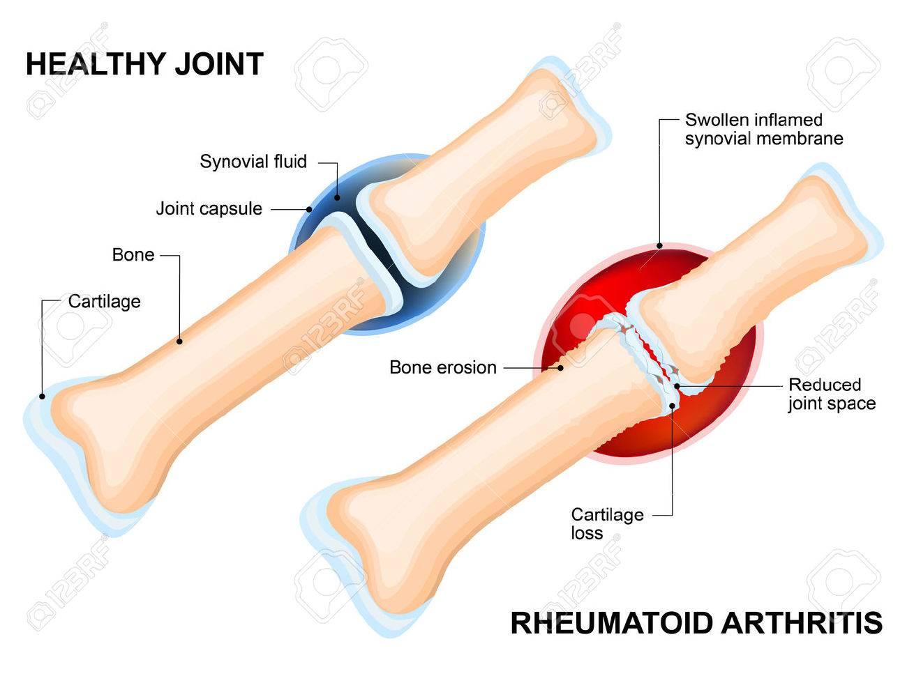 a jobb váll ízületi gyulladása reumatológus ízületi kezelés