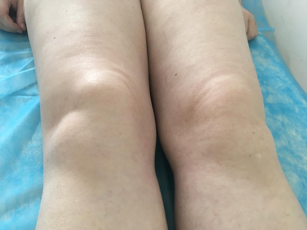 ízületi növekedés és kezelés ízületi fájdalom a yarinából
