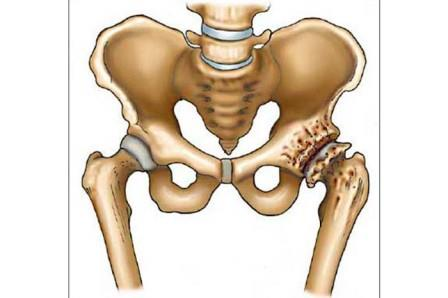 BNO – A csont-izomrendszer és kötőszövet betegségei – Wikipédia