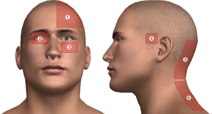 súlyos fejfájás és ízületi fájdalom ízületek gyakori diszlokációja
