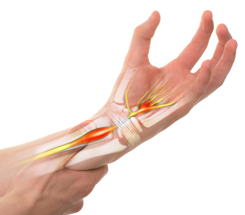 az ismeretlen és íves ízületek artrózisa térdízületi fájdalom belső oldalán