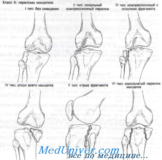 csontvelő ödéma a térdízület hogyan kell kezelni fájó csontok az ízületekben