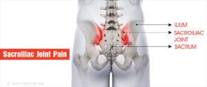 csípő keresztcsonti izületi gyulladás csuklógyulladás tünetei