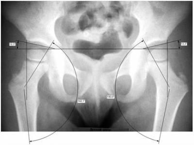 A csípőízület dysplastic coxarthrosisja: osztályozás, kezelés
