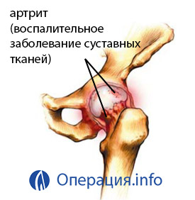 csípőízületek coxarthrosis artrózisa