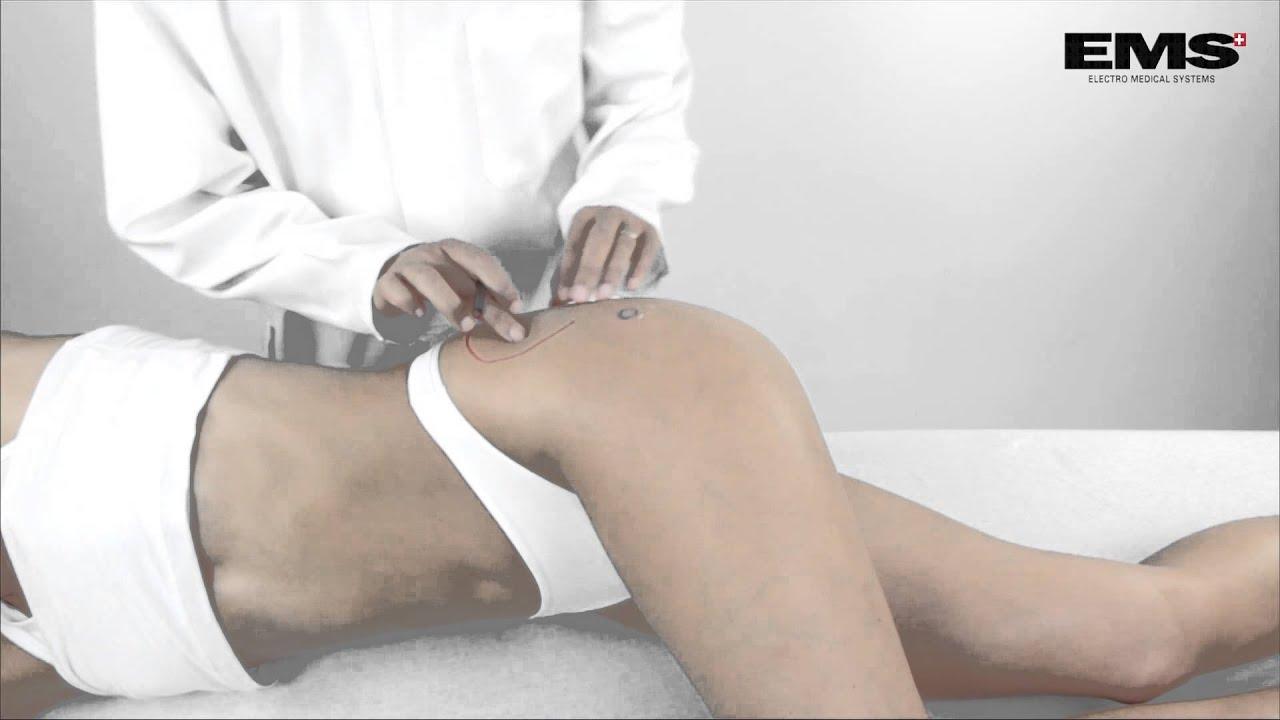 csípőízületek fáj, amikor ül fájdalom a láb ízületeiben futás után