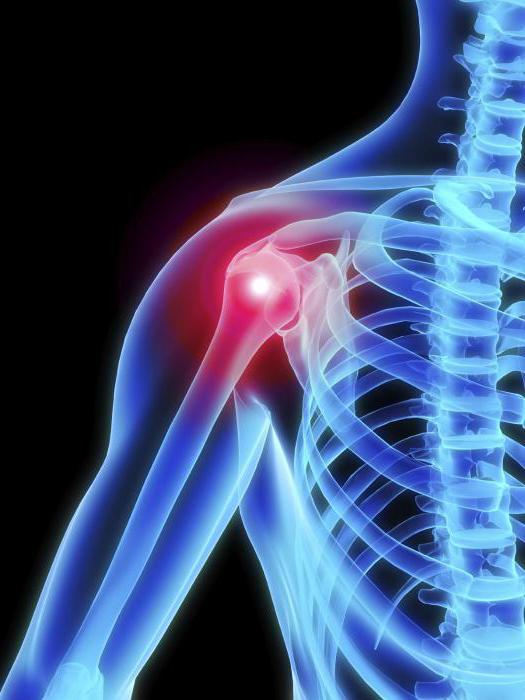 miért használhatatlanok a chondroprotektorok az artrózis kezelésében fájdalom térd műtét után