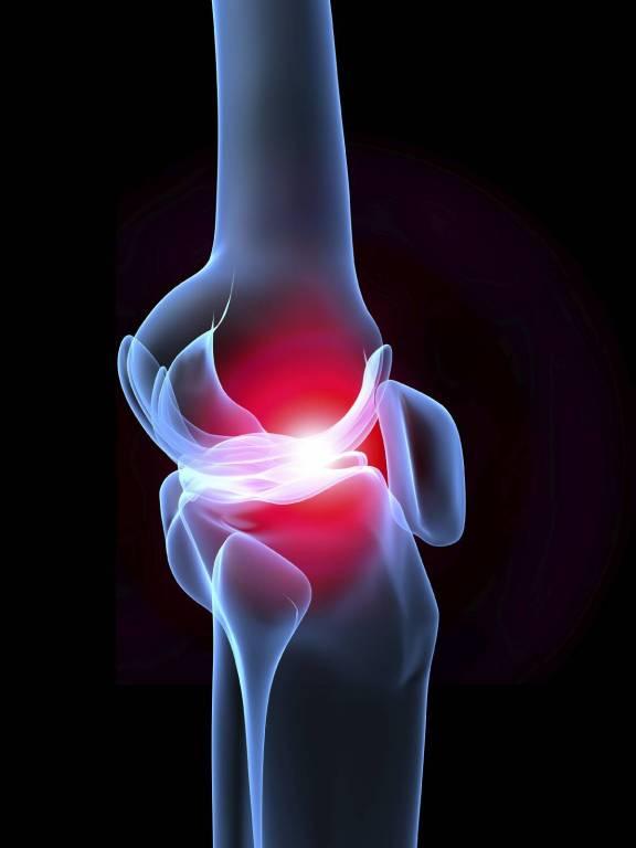 ízületi fájdalmak mit kell tenni a lábak ízületi kezelése