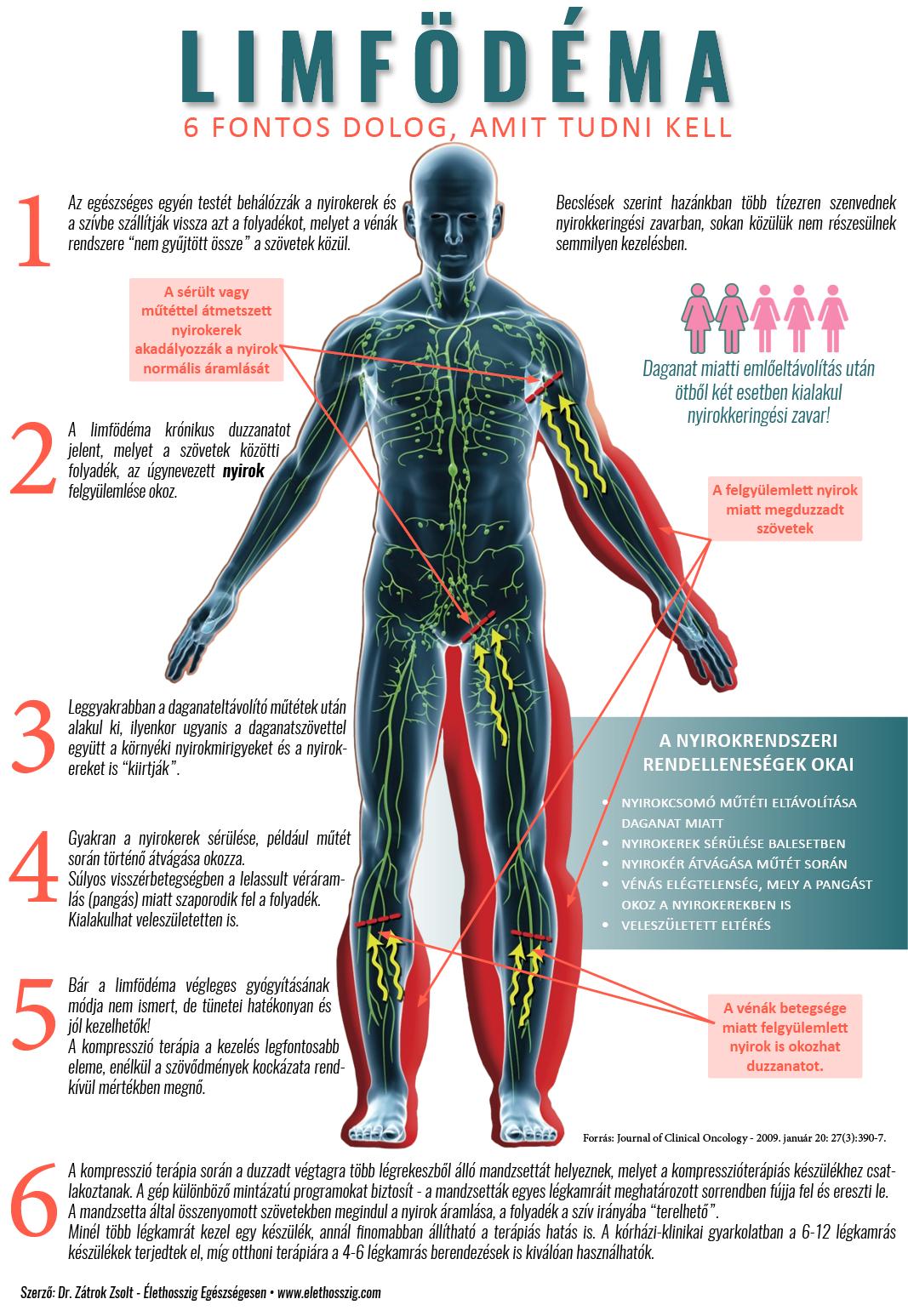 ízületi fájdalom duzzadás kezelése