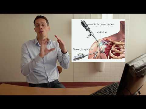 A vállideg neuritise: Tünetek és tünetek