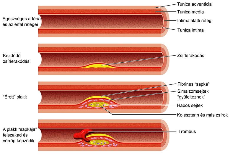 az artrózis kezelési standardjai