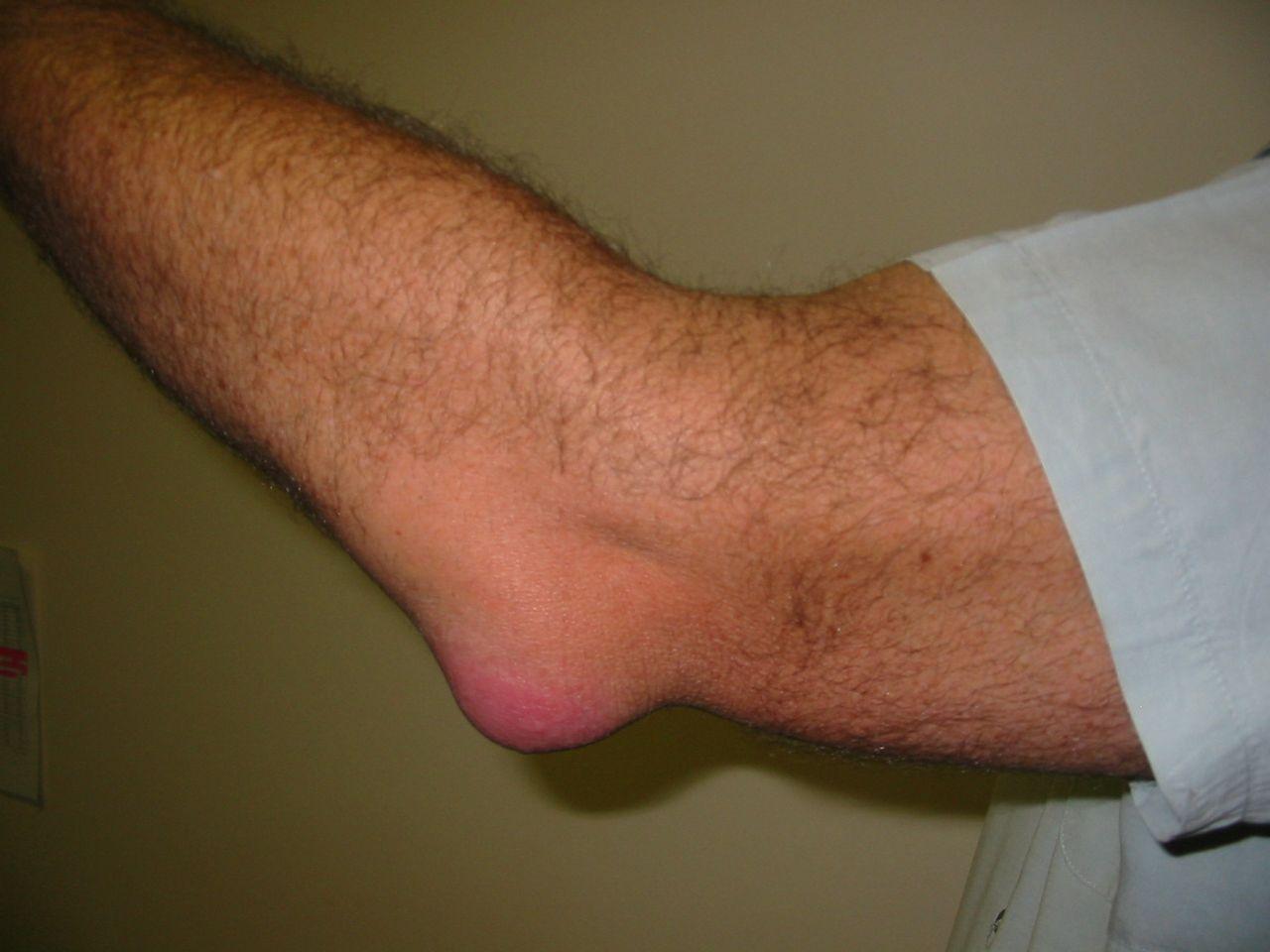 duzzadt könyökízület, mint kezelni hogyan lehet kezelni a nagy lábujj artrózisát