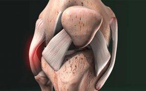 Térd - Hogyan kerülhetők el a sérülések?